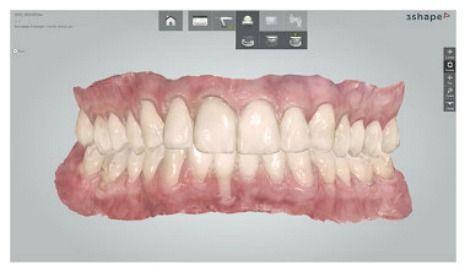 Trios Dental Scan of Teeth