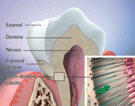 Exposed root surface causes teeth to become sensitive to hot and cold temperatures