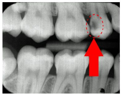Cavity appears as a dark gray lesion on an x-ray