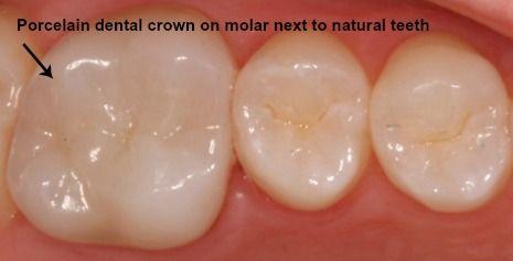 Porcelain dental crown next to natural teeth
