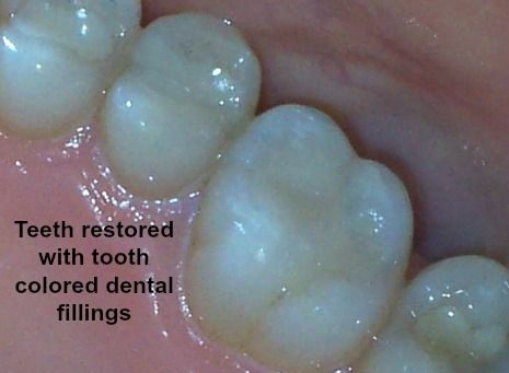 Teeth with tooth colored fillings
