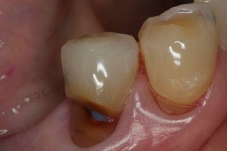Picture of tooth cavity at gum line