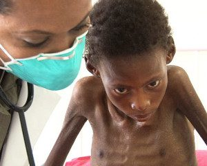 A child with MDR TB and HIV in Lesotho © PIH