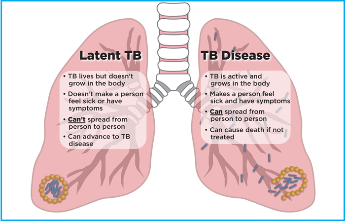 Latent TB | What is latent TB? symptoms of latent TB, latent