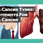 Lung Cancer Types: Treatments For Lung Cancer