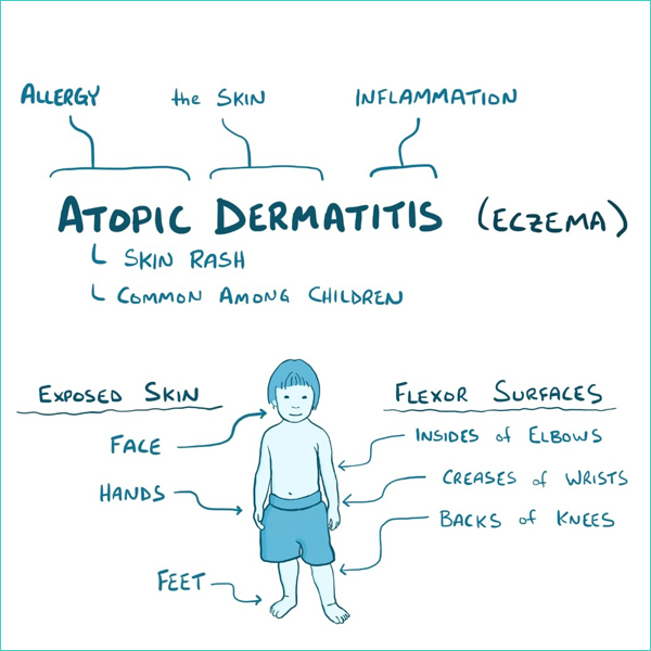 atopic dermatitis Meaning