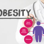 Understanding Obesity: What Are the Treatment Options for Obesity