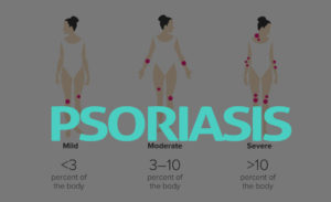 Psoriasis: What Are the Symptoms, Diagnosis and Treatment
