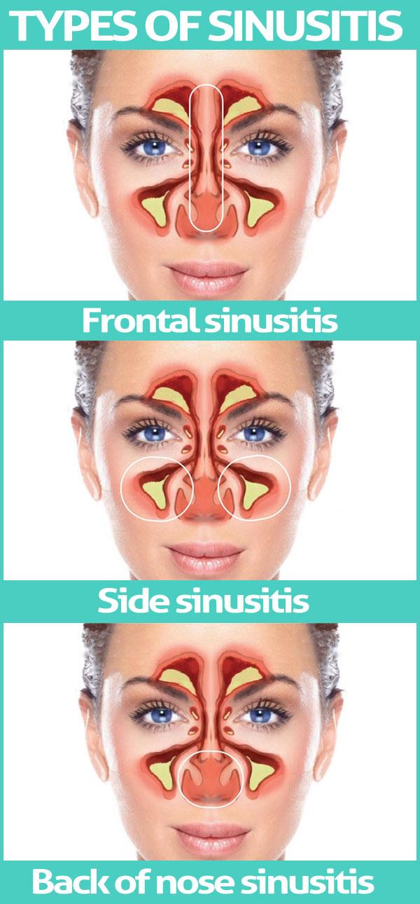 Types of Sinusitis