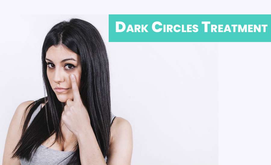 Dark Circles Treatment & Home Remedies That Actually Work