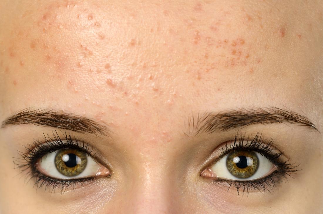 pomade acne