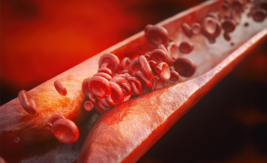 10 List of Foods to Avoid With High Triglycerides