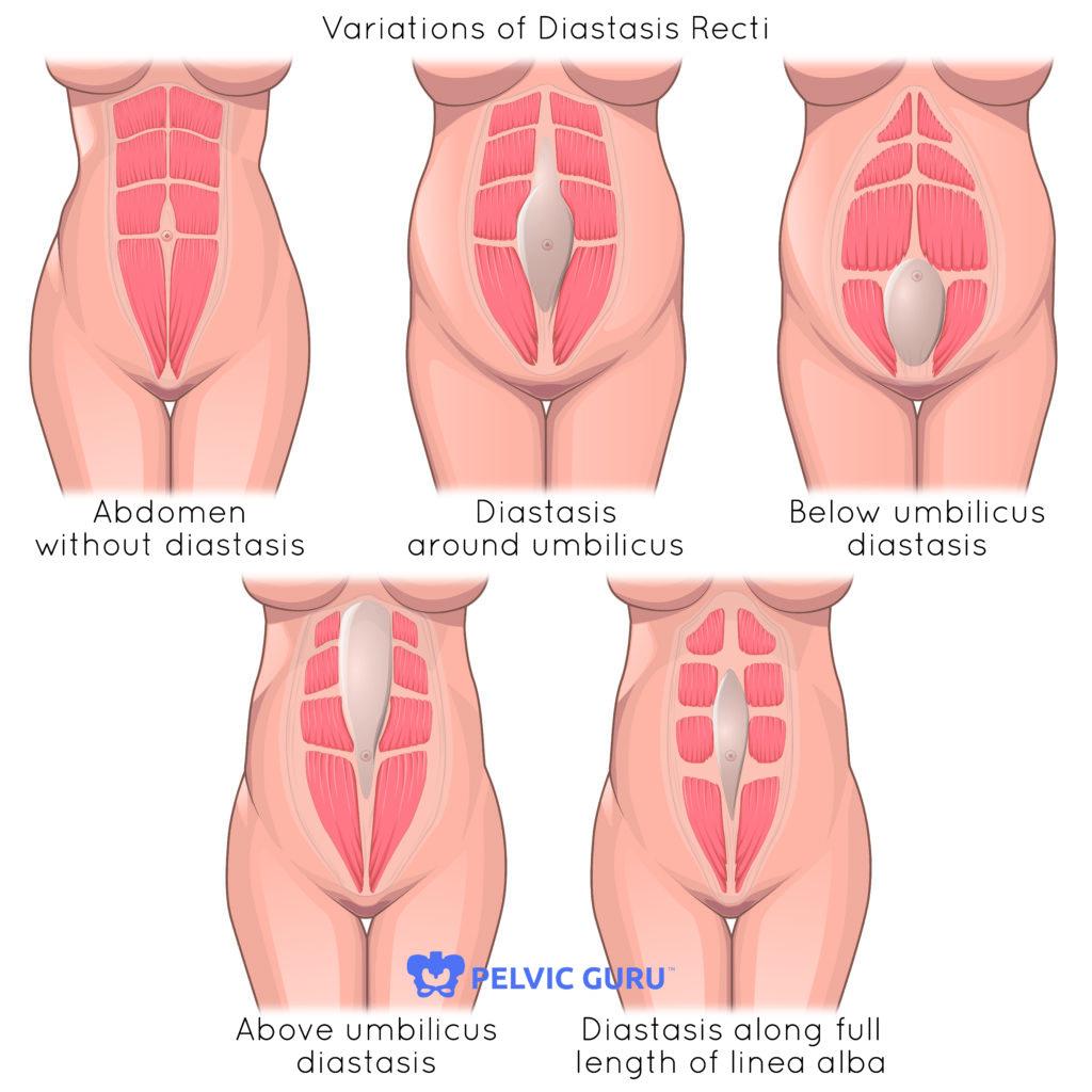 diastasis recti pelvic physical therapy