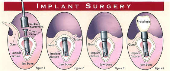 Diagram of dental implant surgery