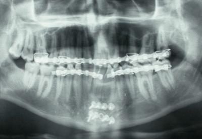 X-ray of facial trauma