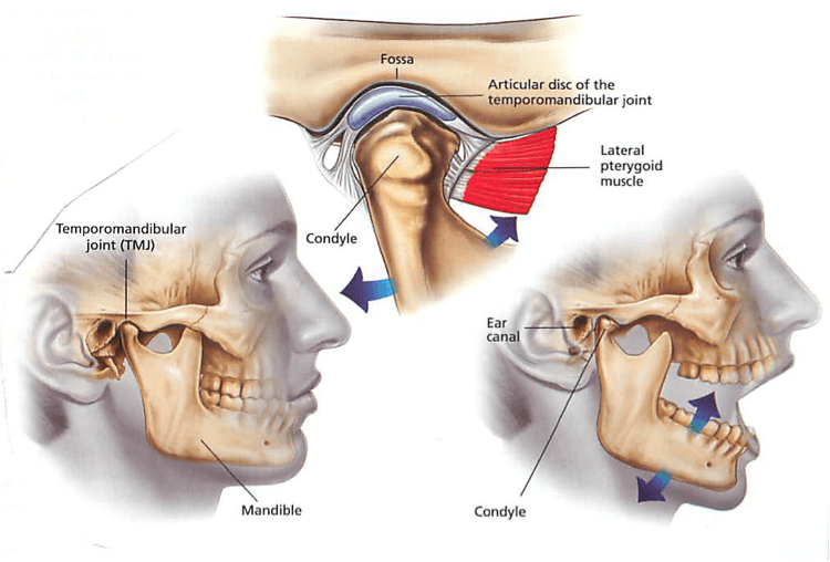 Diagram showing how TMJ symptoms occur