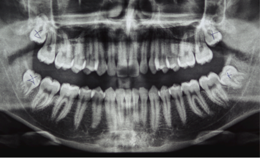 X-ray of wisdom teeth