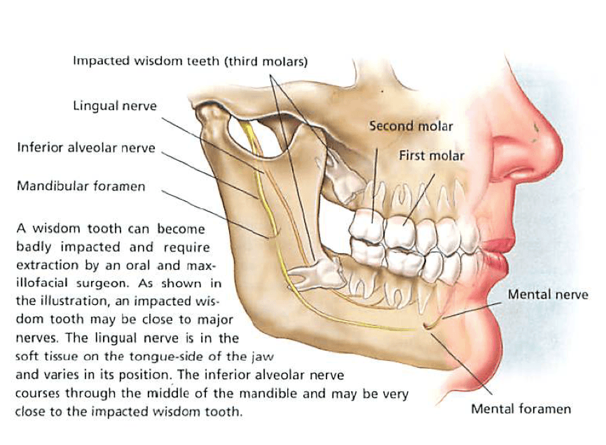 Wisdom tooth diagram