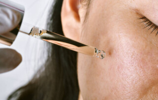 What Are Different Types Of Acne Treatments?