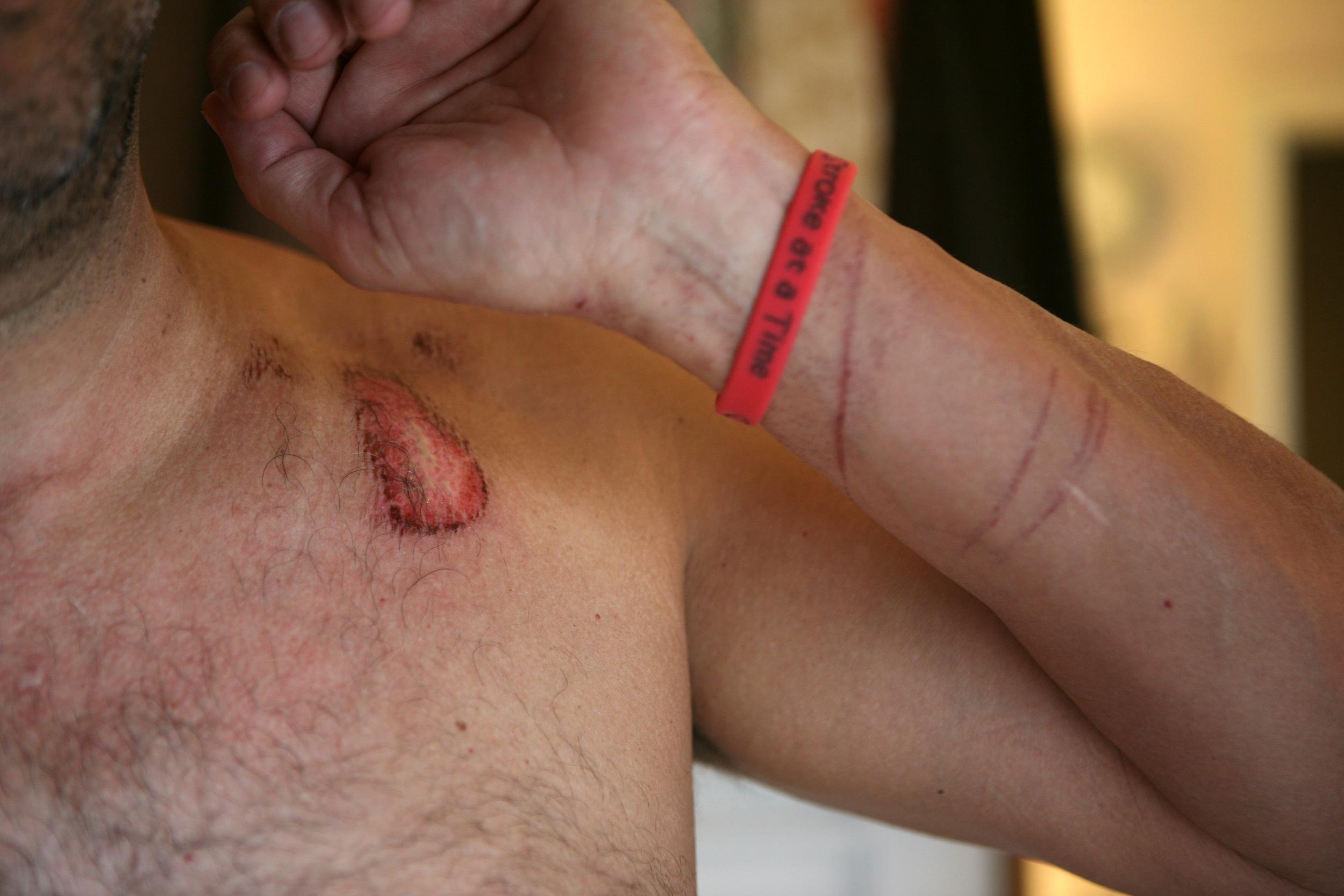 Jelly Fish scars