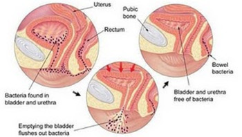 How to Treat Urinary Tract Infections