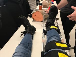 thigh-down shot of 2 legs in jeans, black boots, right leg has a metal splint