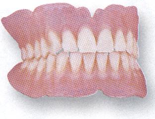 full-denture1