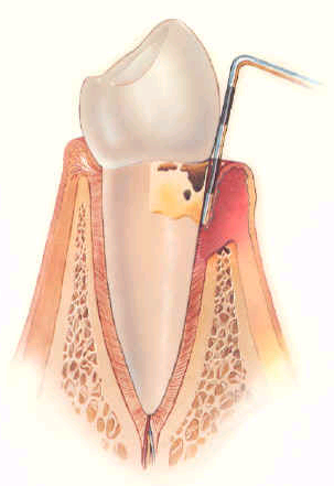 Moderate Periodontal Disease