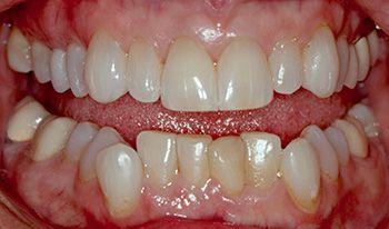 BEFORE: Retracted teeth