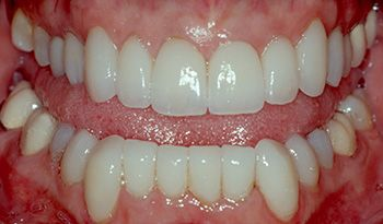 AFTER: Instant orthodontics