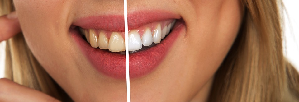 Phillips® Zoom Teeth Whitening system