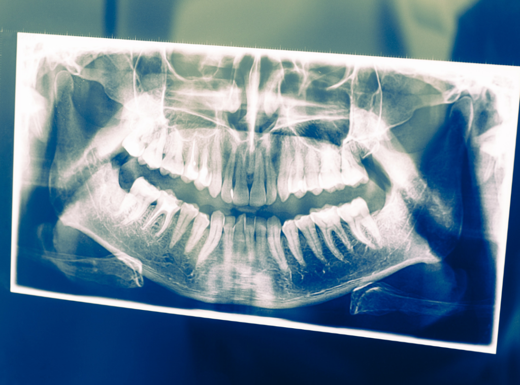 Dental Bone Loss