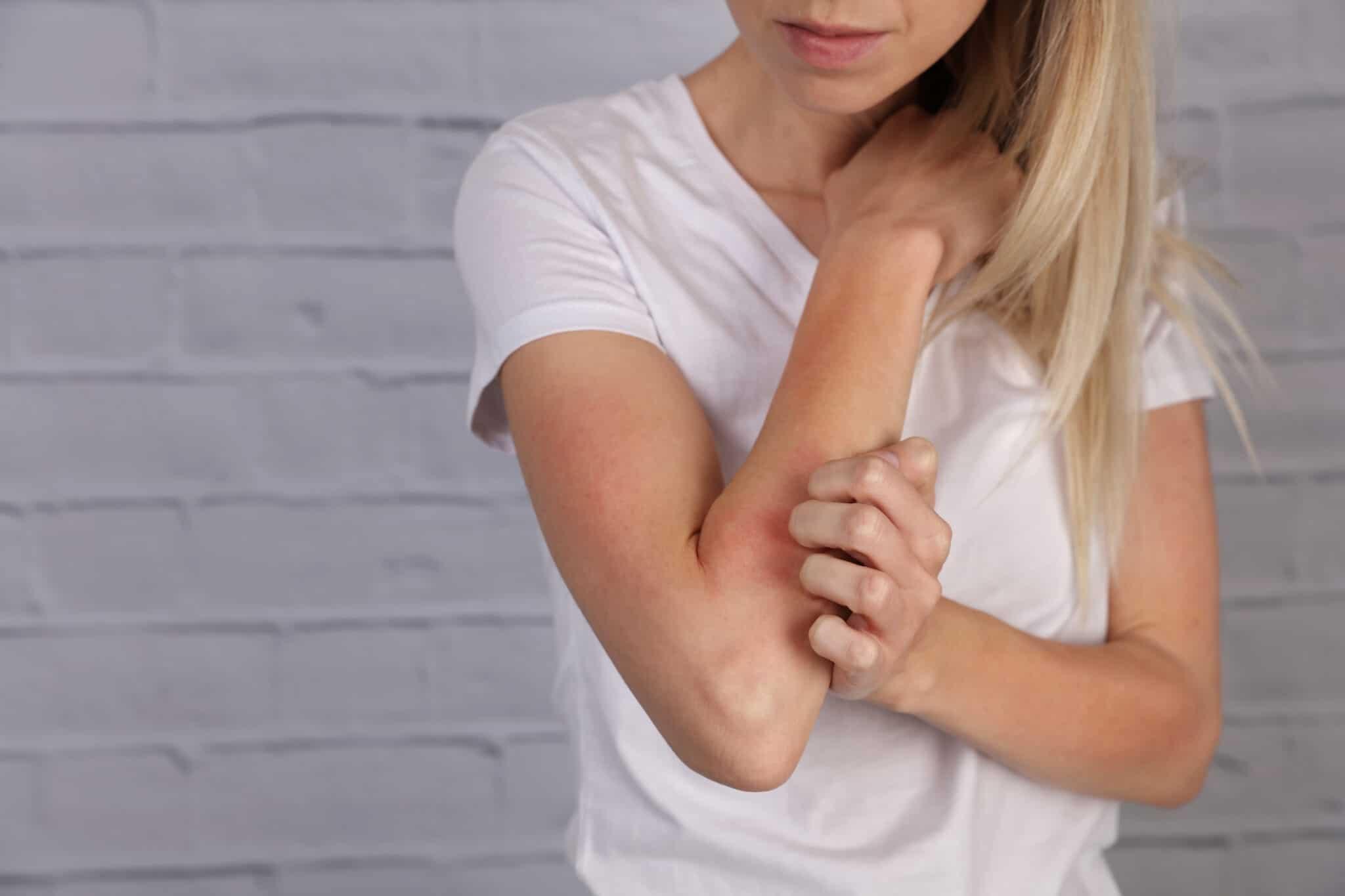 skin allergies blog