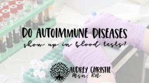do autoimmune diseases show up in blood tests