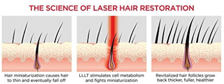 The science of laser hair restoration