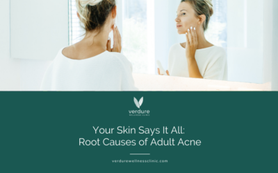 Your Skin Says it All: Root Causes of Adult Acne