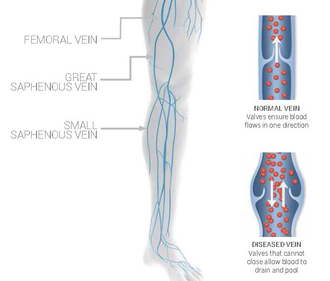 A chart of Femoral Vein, Great Saphenous Vein, and Small Saphenous Vein