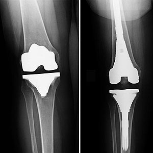 Complex Revision Surgery For Joint Replacement