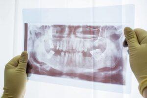 A dental radiograph