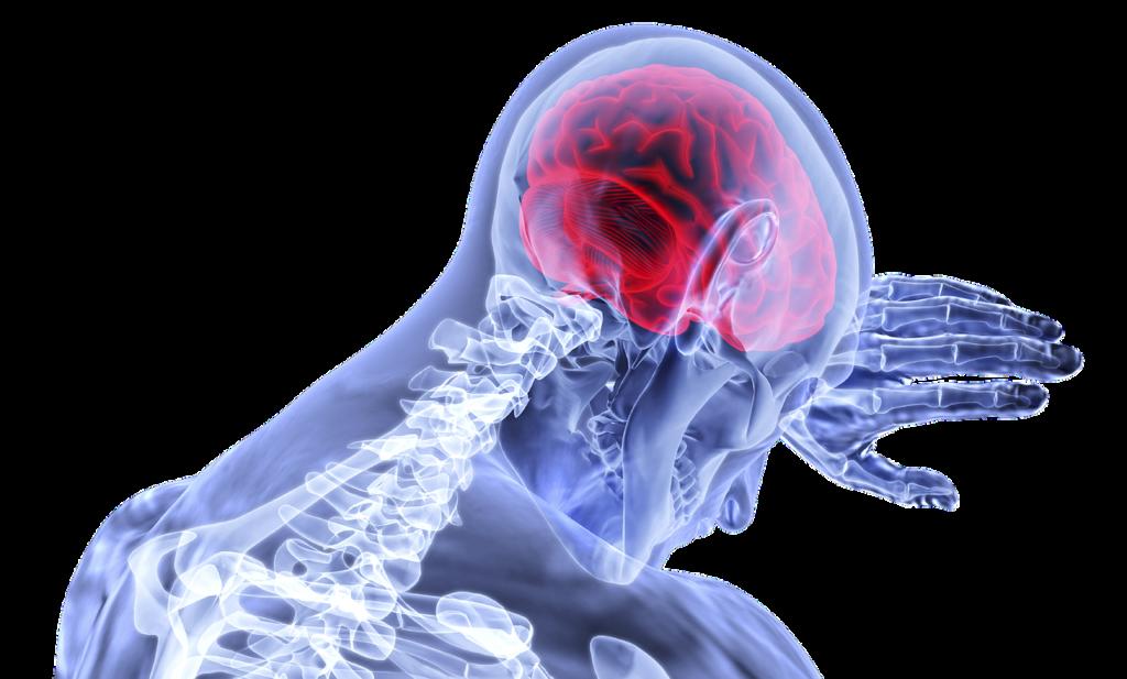 mostrar a posição anatômica do cérebro humano em uma figura 3D.