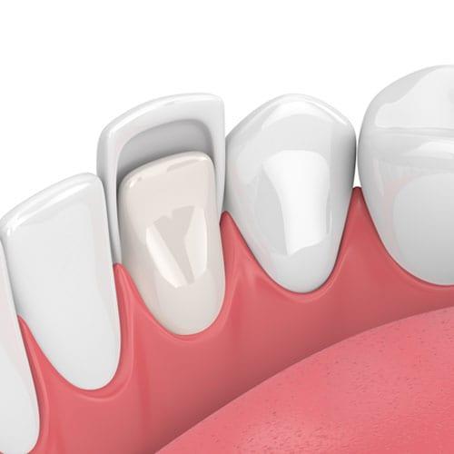 dental veneers up-close