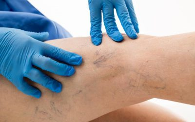 You're Not Stuck with Spider Veins