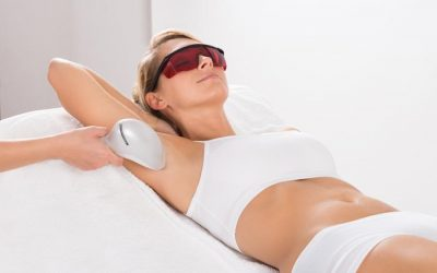 What to Expect During Laser Hair Removal