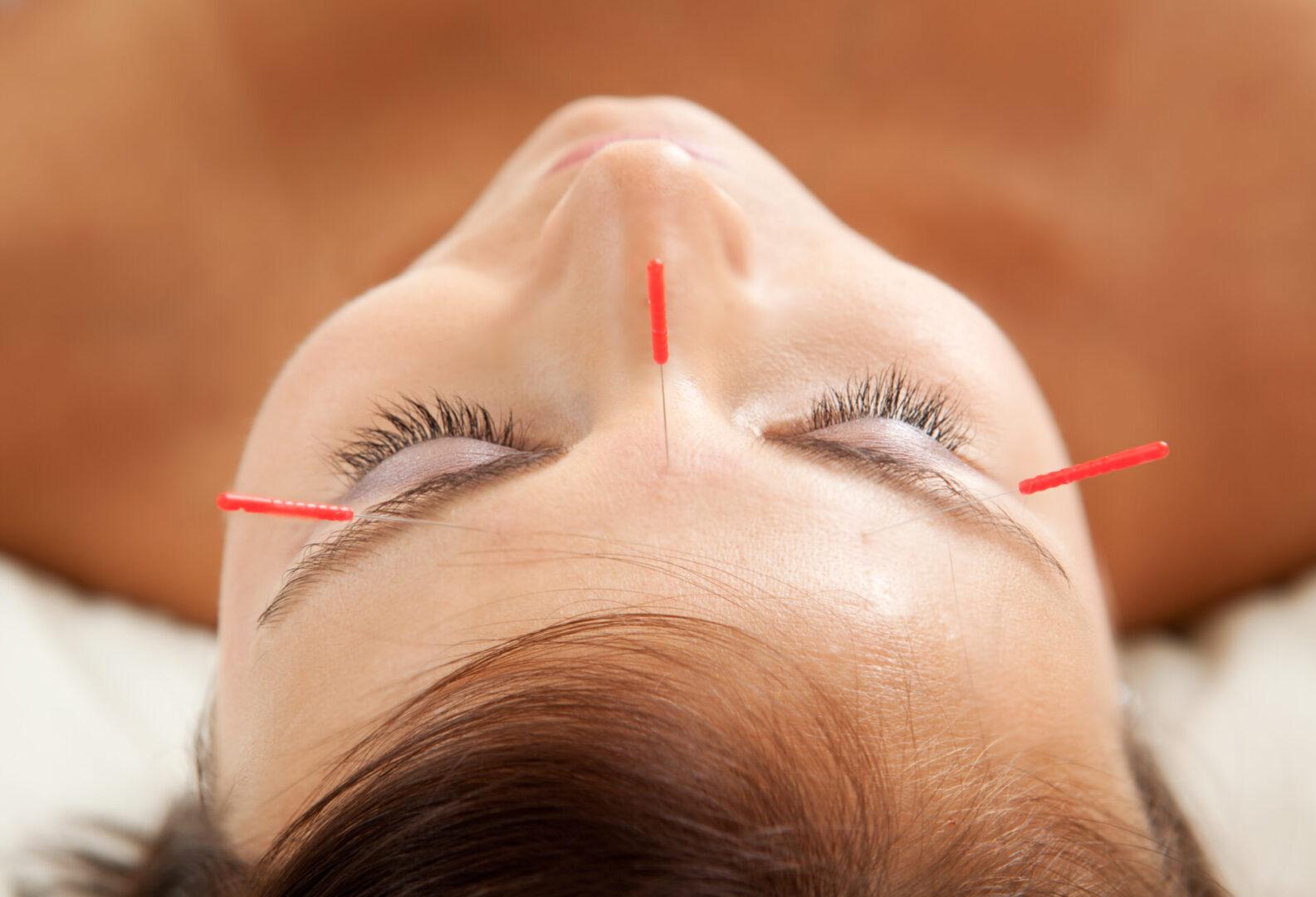 facial needles female-0001