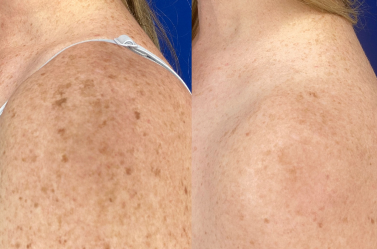 Style and Beauty by Priscilla client shows missing freckles after skin rejuvenation treatment