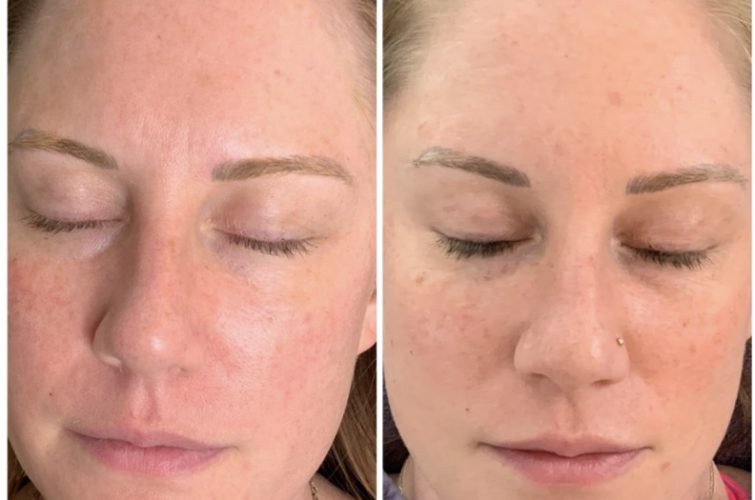 Style and Beauty by Priscilla client shows before and after redness treatment on face