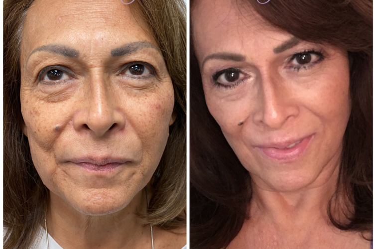 A woman's face before and after facial rejuvenation shows less aging, spots and wrinkles