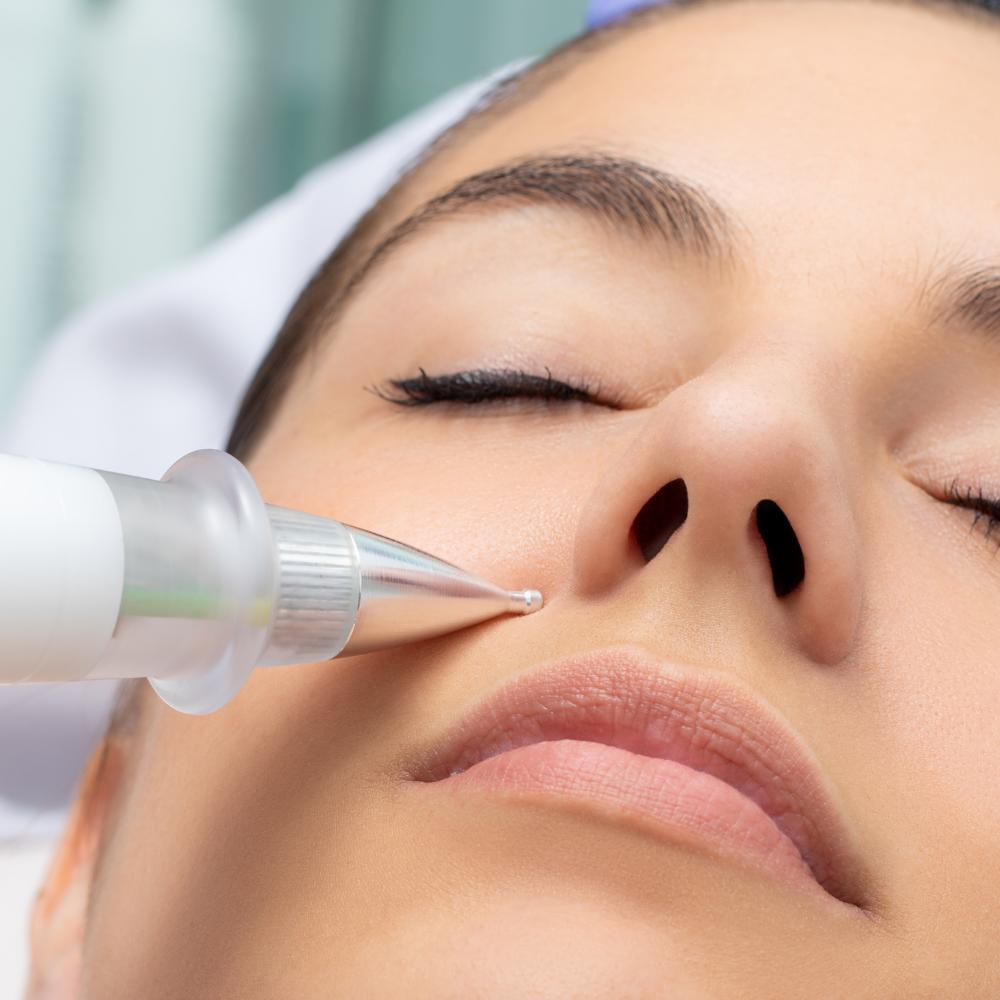 Fibroblast Plasma Skin Tightening procedure on Woman's face