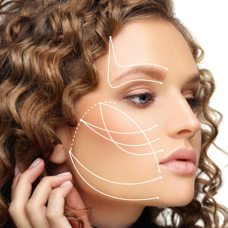 PDO Thread Lift lines drawn on a woman's face