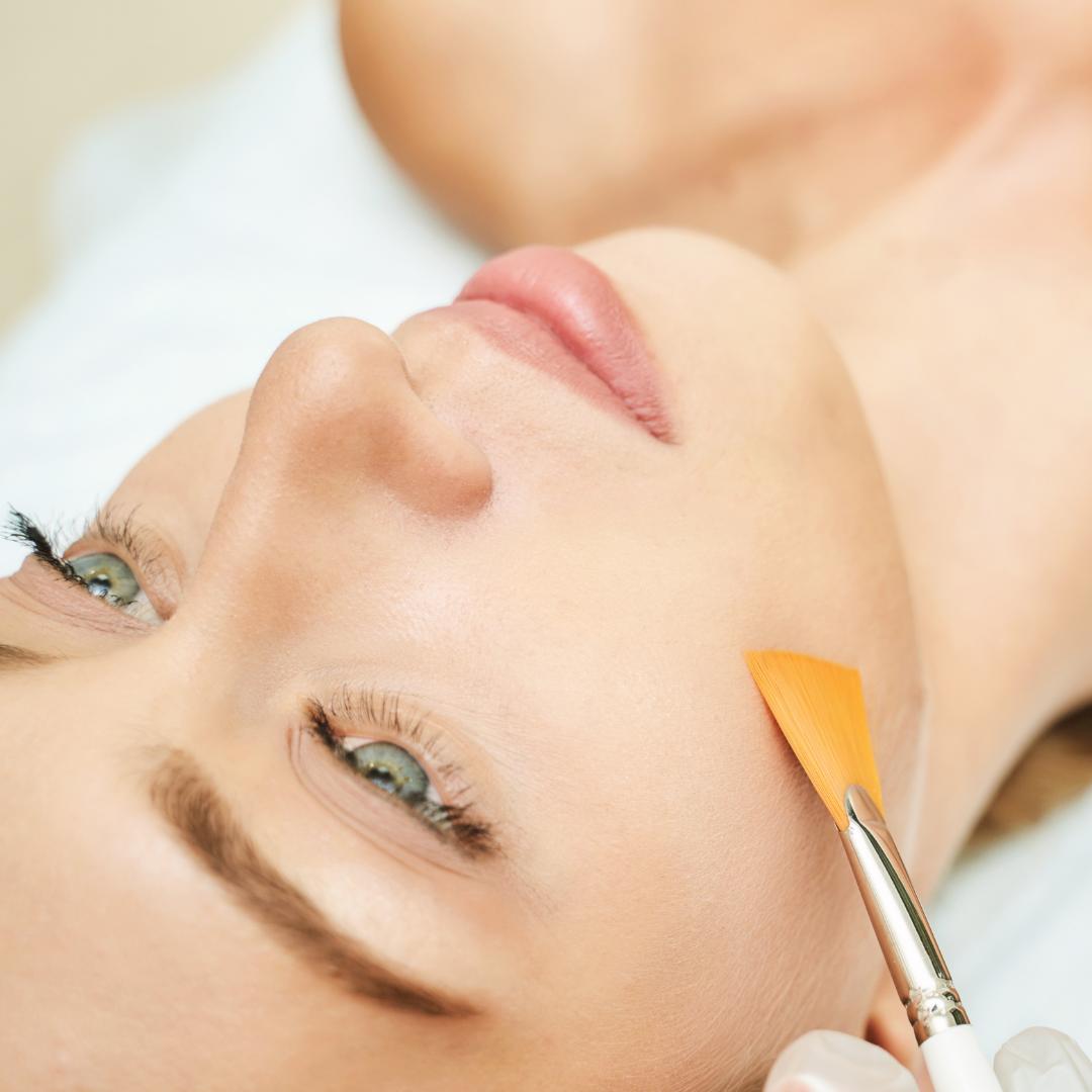 woman getting facial chemical peel